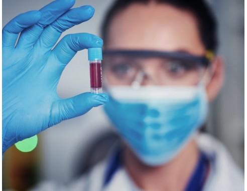 ir a test serologico